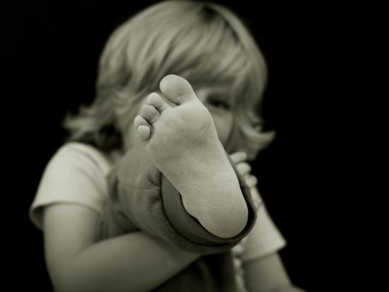 子供の魚の目はほぼウイルス性イボ!?たった1ヵ月で痛みもなく治した方法